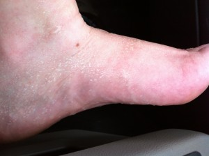 My sweaty foot after a phone call.