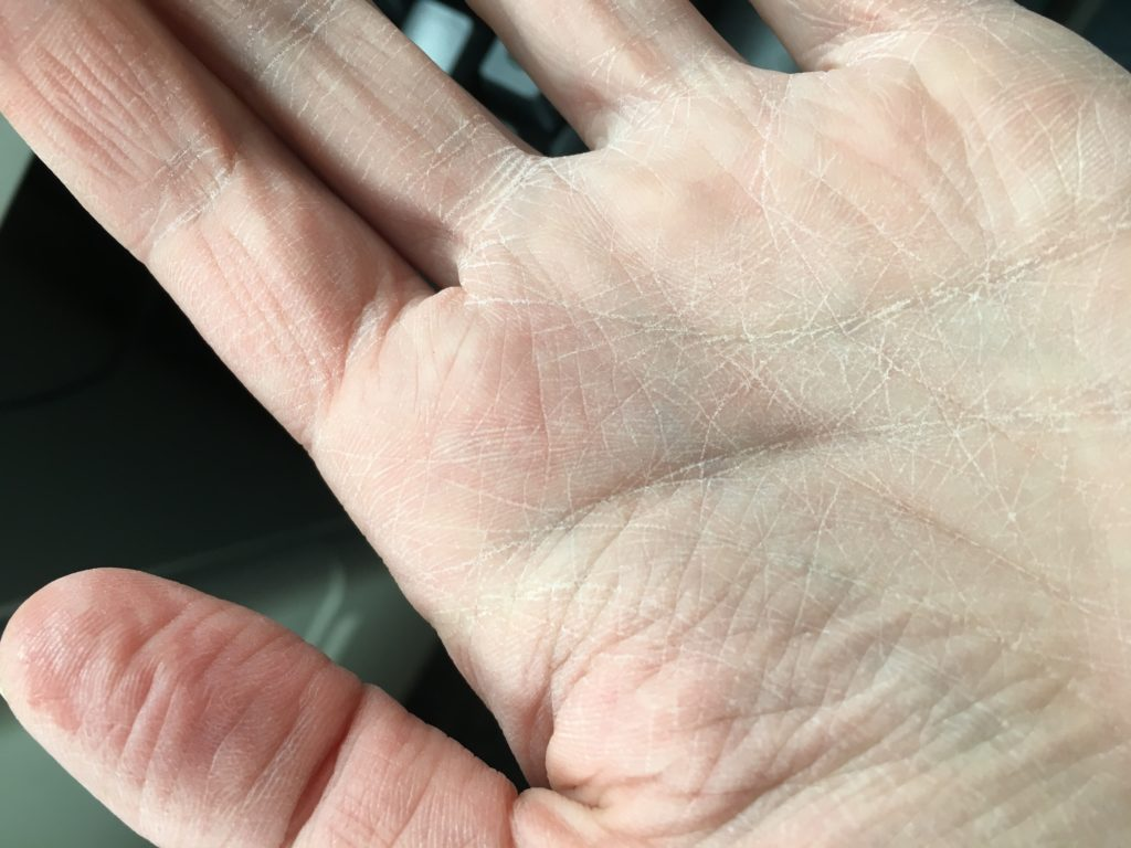hands after Carpe Lotion application