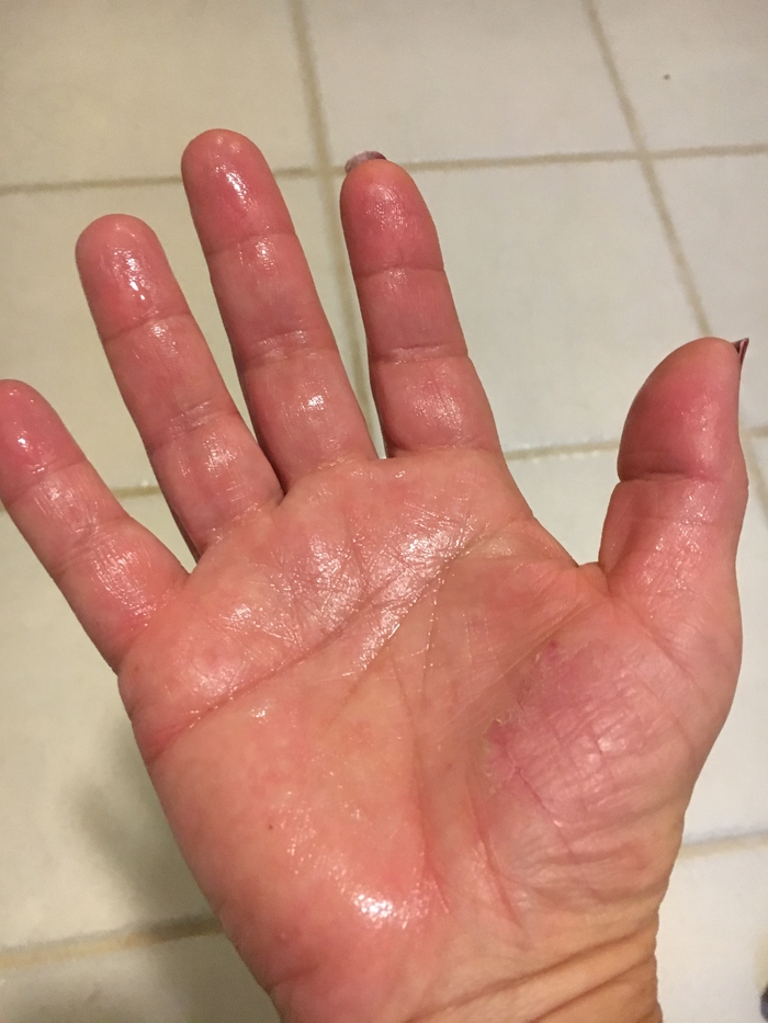 Carrie's sweaty hands (palmar hyperhidrosis)