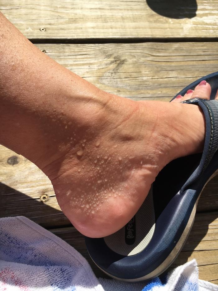 Carrie's sweaty feet aka plantar hyperhidrosis
