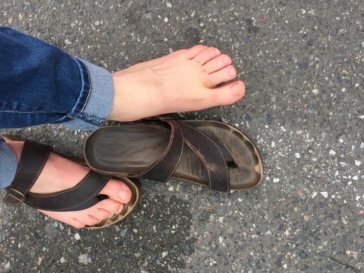sweaty feet in sandals