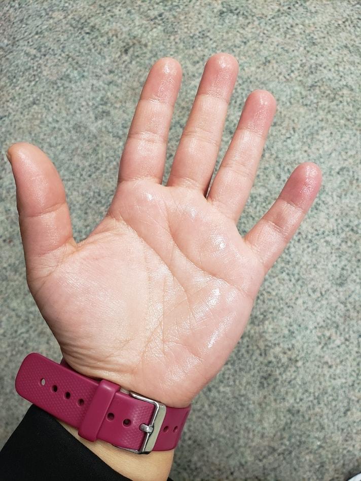 palm sweating