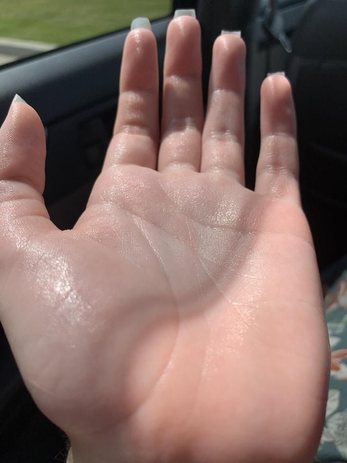 Eryn's sweaty hand